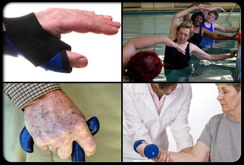 rheumatoid arthritis s20 exercise